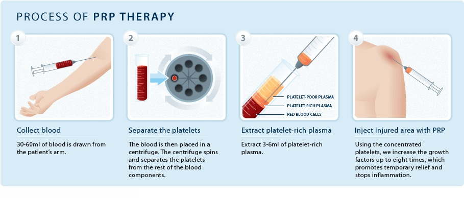 Protein Rich Plasma - Longevity Medical Institute